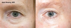 Male eyes before and after ThermiSmooth treatment