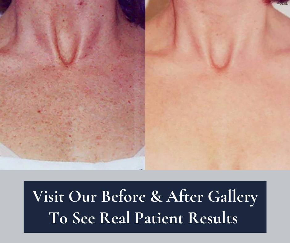 See real patient results.