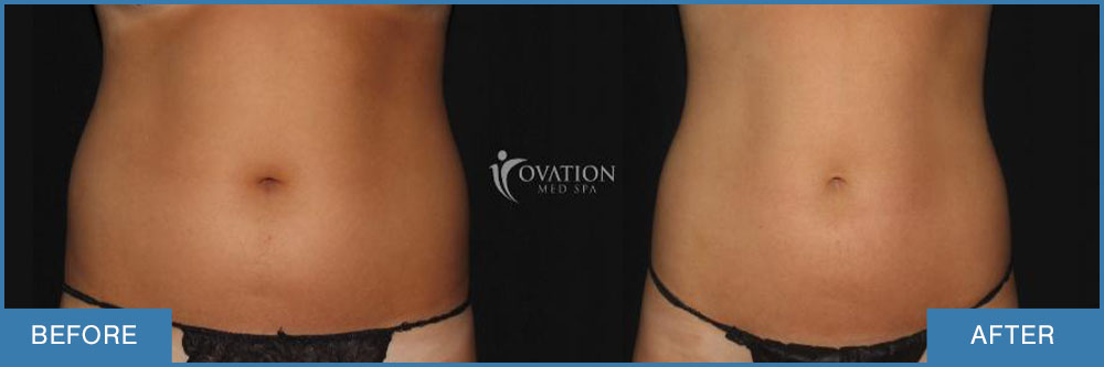 before and after female midsection coolsculpting front view