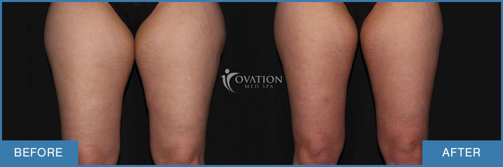 before and after female thigh coolsculpting